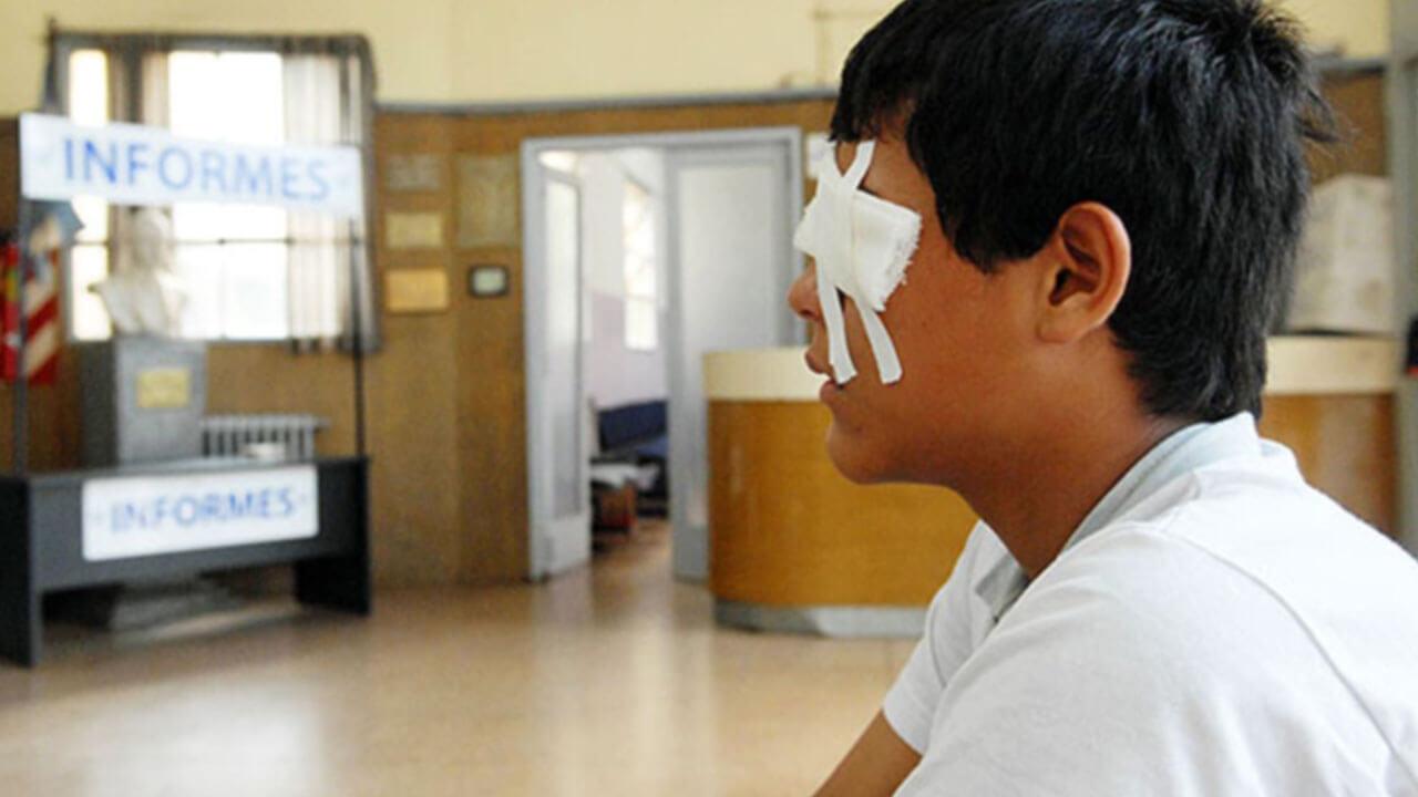 Pirotécnicos pueden causar graves quemaduras