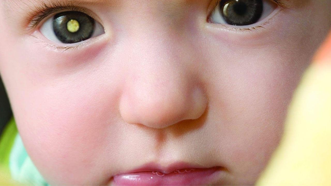 Retinoblastoma: cáncer ocular agresivo es más frecuente en niños