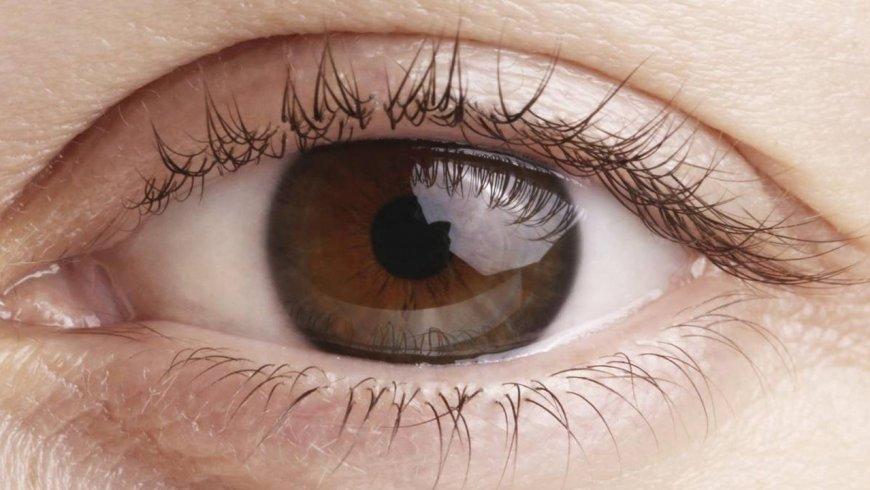 ¿Cuáles son los síntomas de las cataratas oculares?