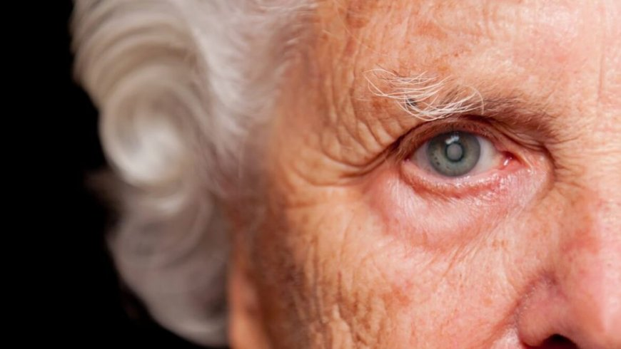 Catarata: conoce la principal causa de ceguera en el perú y el mundo