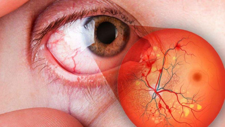 Cómo la diabetes afecta la visión y qué podemos hacer al respecto
