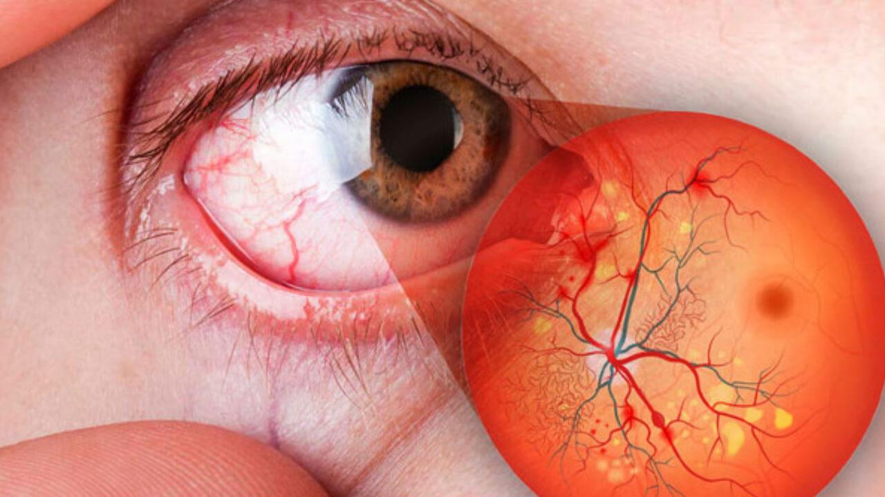 Conoce cómo puede afectar la diabetes a tus ojos