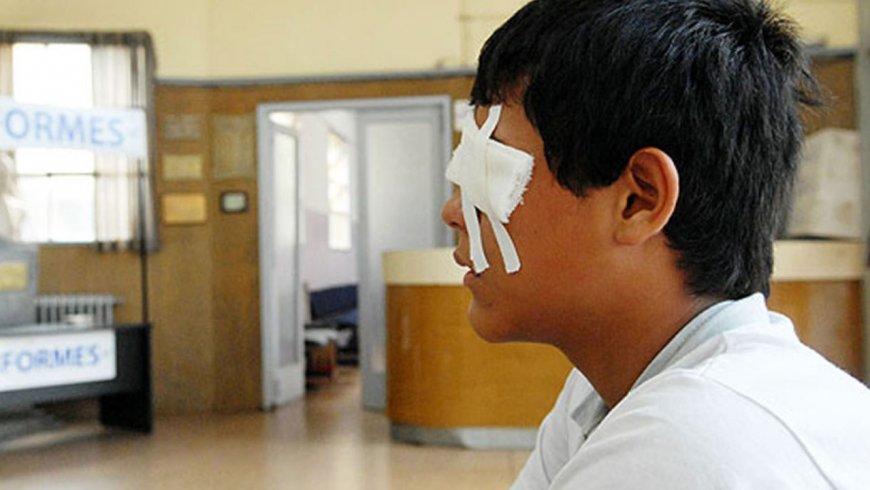 Uso de artefactos pirotécnicos podría causar daños severos en la vista