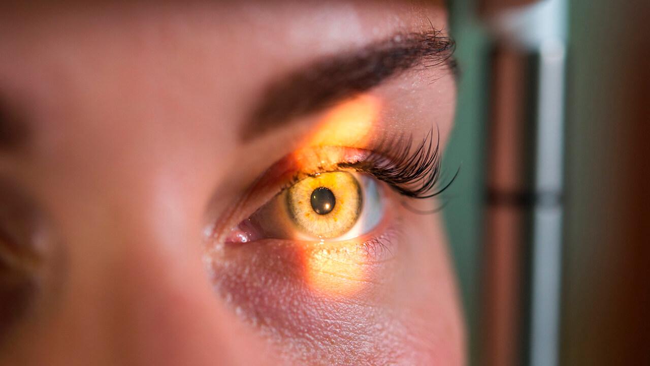 Exposición solar: cáncer ocular