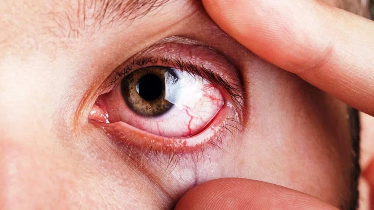 Conozca los nuevos alcances en el tratamiento del glaucoma