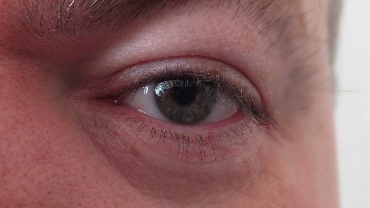 Degeneración macular: ¿qué es y cómo evitarla en la tercera edad?
