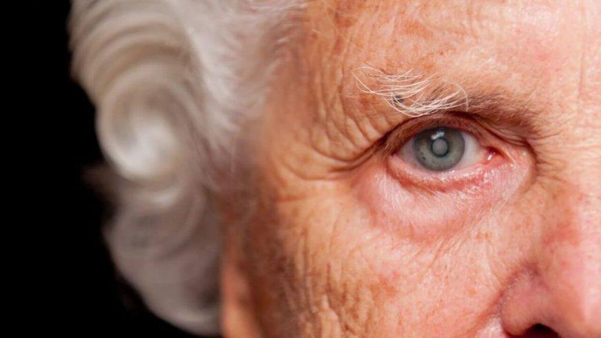 Catarata: conoce los detalles de la primera causa de ceguera reversible