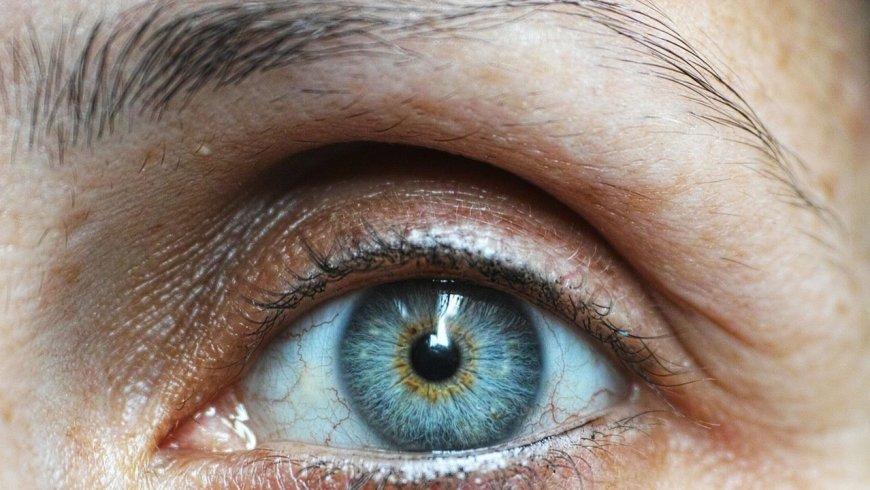 ¿ Qúe es el melanoma ocular y como puede detectarse a tiempo?