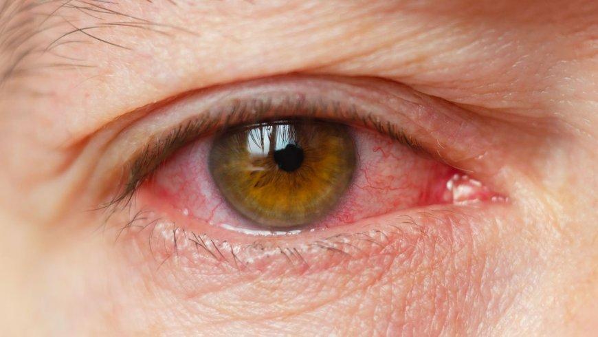 ¿Qué es la uveítis y por qué es considerada una enfermedad rara?